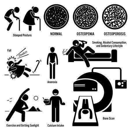 osteoporosis: La osteoporosis Viejo Hombre Mujer Factores de Riesgo Síntomas Prevención Diagnóstico Figura Stick pictograma Iconos Vectores