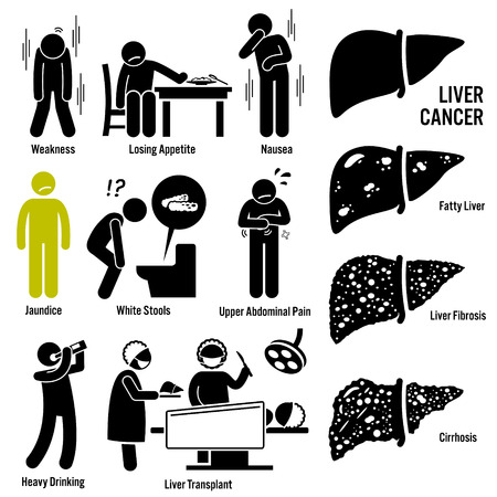 higado humano: Los síntomas del cáncer de hígado Causas Factores de riesgo Diagnóstico Figura Stick pictograma Iconos Vectores