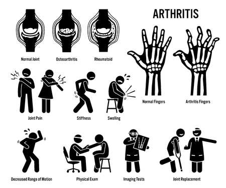 Arthritis, Joint Pain, and Joint Disease Icons. Pictograms depict arthritis signs, symptoms, diagnosis, and treatment. Icons include bones for osteoarthritis and rheumatoid arthritis. Illustration
