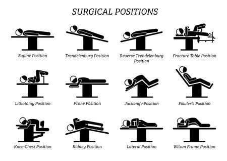 Chirurgie Operatie Posities. Stokfiguren geven een reeks chirurgische posities weer voor de patiënt op de operatiestoel en het bed.