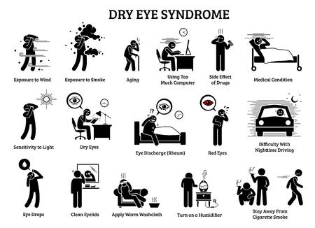 Sindrome dell'occhio secco. Le illustrazioni delle icone mostrano i sintomi, le cause, gli effetti e i rimedi casalinghi per il problema della salute dell'occhio secco. Vettoriali