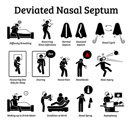 Deviated nasal septum icons. Illustrations depict signs and symptoms of nose problem. Difficulty breathing, sinus infection, snoring, and facial pain. Treatments are nasal spray and septoplasty. Ilustração