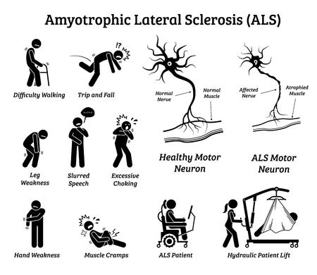 Amyotrophic lateral sclerosis ALS disease signs and symptoms. Illustrations depict nervous system or neurological disease in ALS patient.