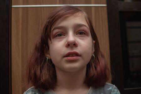 Portrait de petite fille pleurant avec des larmes coulant sur ses joues. Fille qui pleure. La fille de 9 ans est très contrariée. Problèmes d'adolescents. Fille de 9 ans en transition. Tristesse. Une fille avec une coupe de cheveux caret Banque d'images