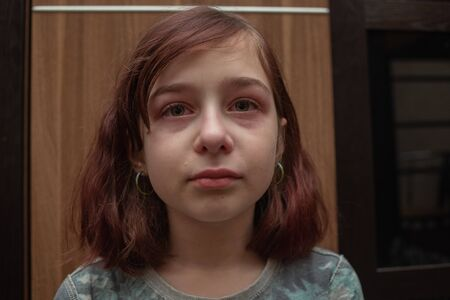 Portrait of little girl crying with tears rolling down her cheeks. Girl crying. Girl 9 years old is very upset. Teenage problems. 9 years old girl in transition. Sadness. A girl with a caret haircut