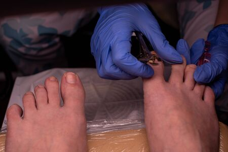 Podology treatment. Podiatrist. Doctor removes calluses, corns and treats ingrown nail. Hardware manicure. Health, body care concept. Selective focus.Podology pedicure. Pedicure without gel or varnish