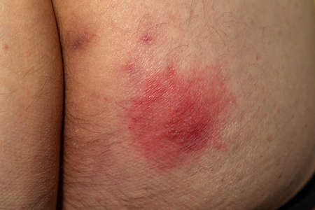 Shingles (disease). Sympton of the Herpes virus on the human body. Skin rash and blisters on the body