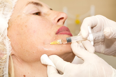 Cosmetic treatment with botox injection in a clinic photo