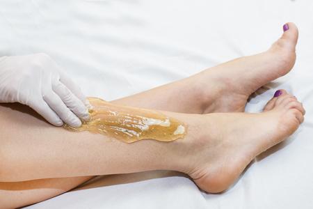 Epilation sugar processes woman passes in a beauty salon Stock Photo - 71758826