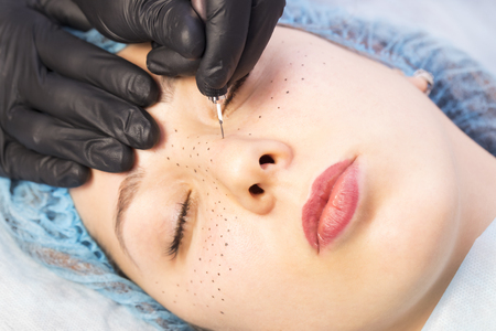 Permanent microblasting tattooing freckles to a woman in a beauty salon