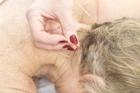 Elderly woman undergoing acupuncture procedure in a fat spa. Stock Photo