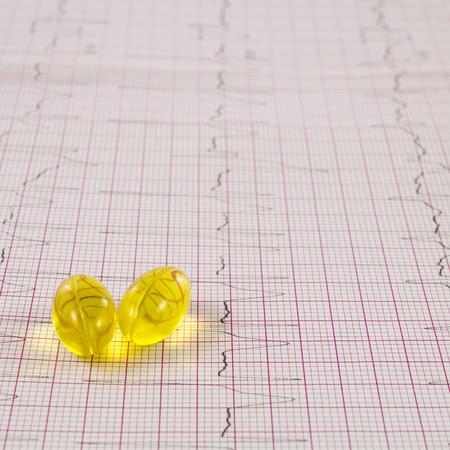elettrocardiogramma: Elettrocardiogramma con le pillole