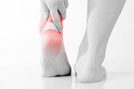 Closeup of womans heel with blister plaster on, Womens problems Stock Photo