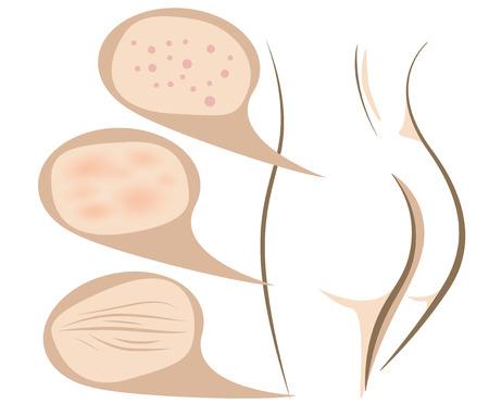 skin infections: Mujer concepto corporal de los procedimientos de lucha contra el envejecimiento de la piel, boceto l�nea vectorial