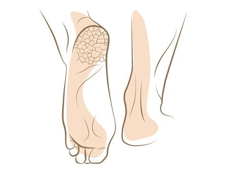 hongo: Concepto de hongos en los pies, con el talón agrietado, dibujo vectorial