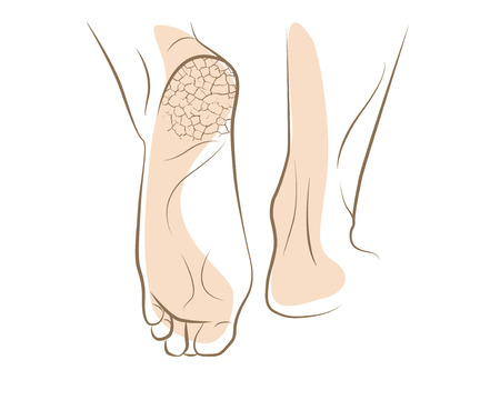 Concept of foot fungus with cracked heel, vector sketch Illustration