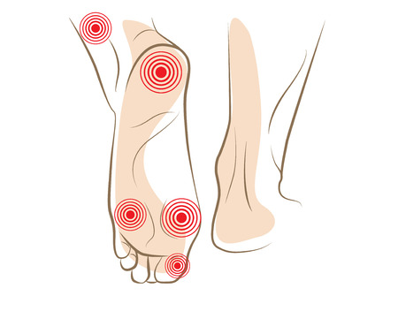 feet naked: Concept of woman foot pain, vector sketch
