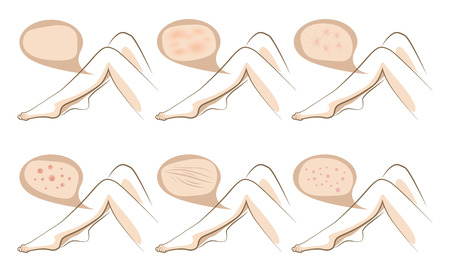 Woman legs concept of anti aging procedures on skin, vector sketches set Illustration