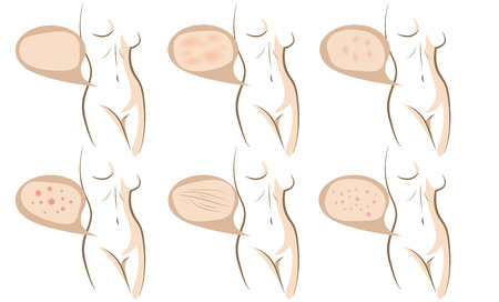 complexion: Woman body concept of anti aging procedures on skin, vector sketches set Illustration