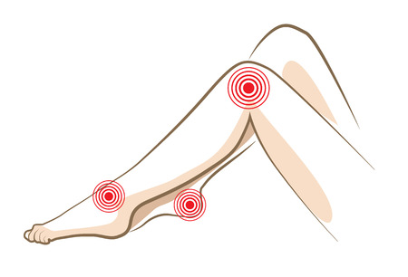 Concept of woman pain in legs, vector sketch
