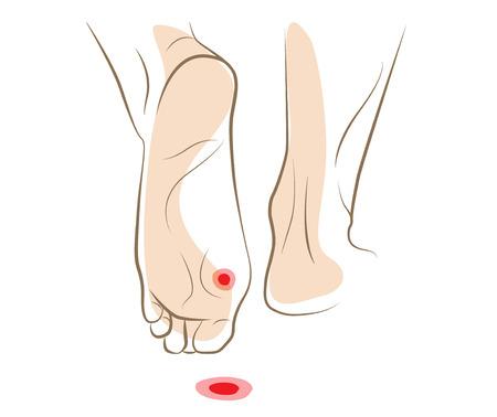 Concept of callus or plantar wart under foot, vector sketch Stock Illustratie