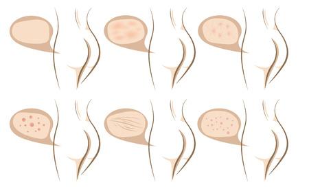 Vrouw lichaam concept van de anti aging procedures op de huid, vector schetsen set
