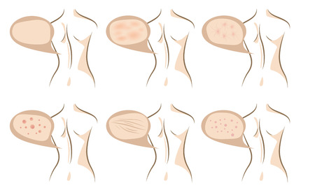 rash: Woman body concept of anti aging procedures on skin, vector sketches set Illustration