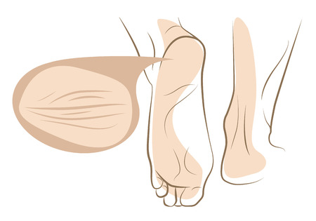 chipped: Concept of dry and cracked skin on woman foot, vector line sketch