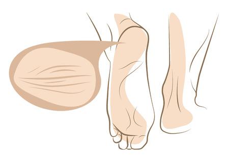 skin infections: Concepto de la piel seca y agrietada en el pie de la mujer, bosquejo l�nea vectorial Vectores