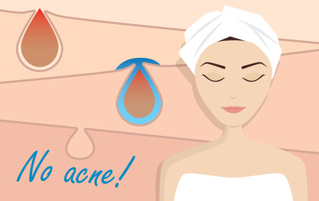 Acne treatment illustration, beauty vector Ilustração