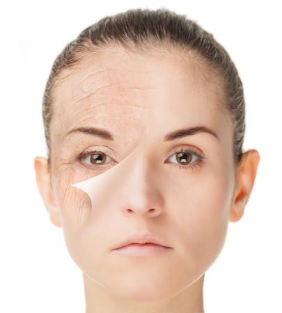Skin care treatment before and after, rejuvenation procedure Stockfoto