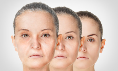 aging woman: Aging process, rejuvenation anti-aging skin procedures old and young concept Stock Photo