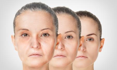 Verouderingsproces, verjonging anti-aging huid procedures jong en oud-concept Stockfoto - 51873208