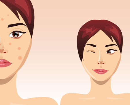 retouch: Acne treatment concept with beautiful woman face, illustration
