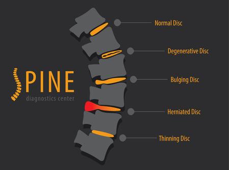 Spine anatomy disc degeneration, medical conceptual infographic vector illustration Stock Illustratie