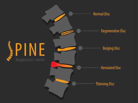 scoliosis: Spine anatomy disc degeneration, medical conceptual infographic vector illustration Illustration