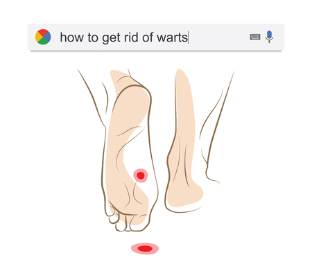 plantar: Searching the web for information about getting rid of warts vector illustration