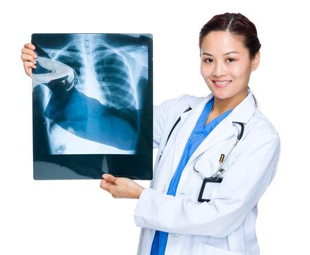 chest x ray: Donna medico con raggi x del torace