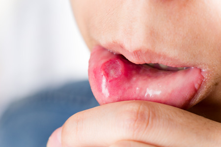 labialis: Mouth aphtha  Stock Photo