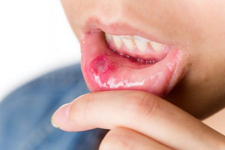 Femme souffrent de bouche aphtes