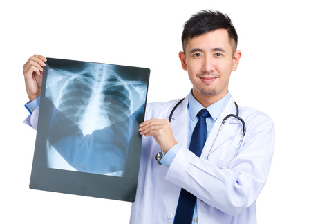 chest x ray: Male doctor hold with x ray Stock Photo