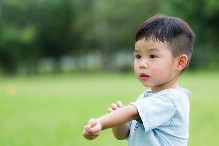 Il neonato di graffiare il suo braccio