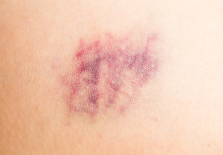 seeping: Bruise on human leg