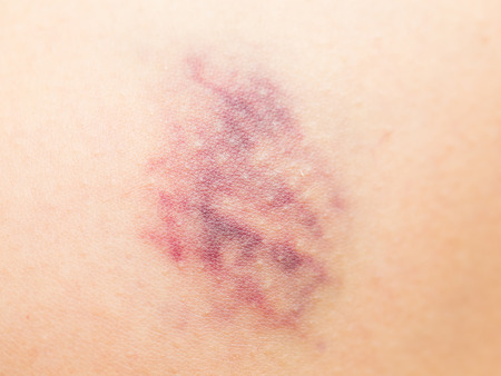 contusion: Bruise on wounded skin