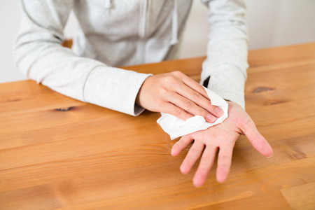 Woman suffer from Hyperhidrosis on hand 写真素材