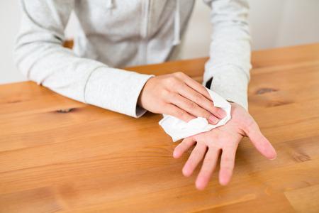 Vrouw lijdt aan hyperhidrose bij de hand Stockfoto