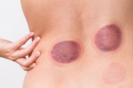 vaccuum: The back of woman having Cupping therapy Stock Photo