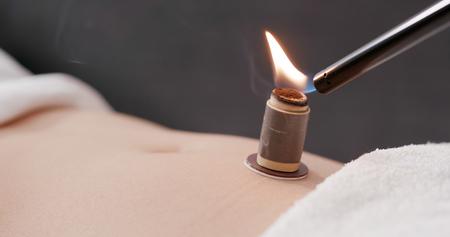 Chinese medicine moxibustion therapy Stock Photo