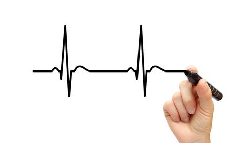 tachycardia: Drawing ECG Stock Photo