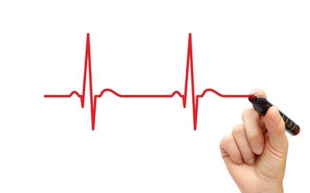 tachycardia: Hand drawing ECG